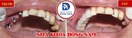 cấy 3 trụ implant răng nhai hàm trên