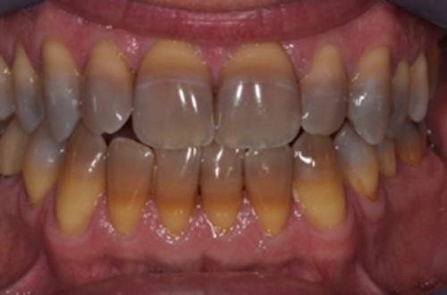 răng nhiễm kháng sinh
