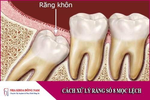 cách xử lý răng số 8 mọc lệch