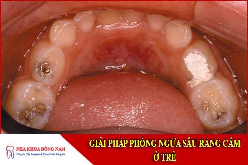 giải pháp phòng ngừa sâu răng cấm ở trẻ
