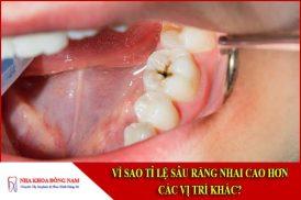 Vì sao tỉ lệ sâu răng nhai cao hơn các vị trí khác?