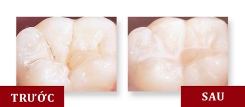 biện pháp phòng ngừa sâu răng