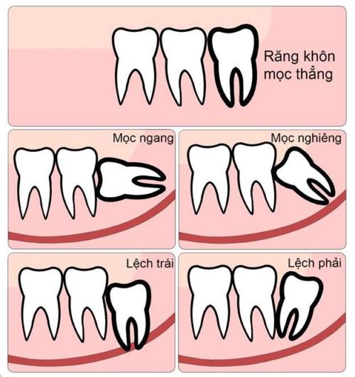 các dạng mọc răng khôn