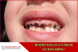 Bé bị đen răng sữa có phải bị sâu răng không?