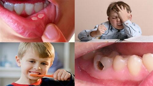 nguyên nhân gây nhiệt miệng ở trẻ