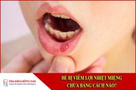 Bé bị viêm lợi nhiệt miệng chữa bằng cách nào?
