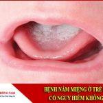 Bệnh nấm miệng ở trẻ em có nguy hiểm không?