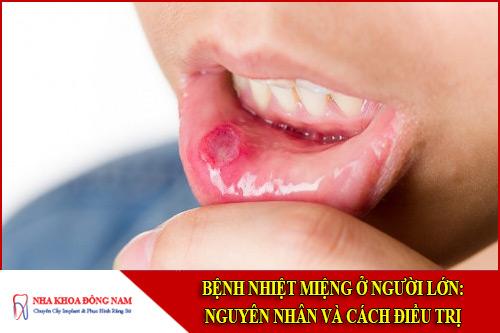 Bệnh nhiệt miệng ở người lớn: Nguyên nhân và cách điều trị