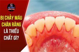 Bị chảy máu chân răng là thiếu chất gì?