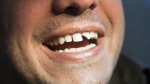 răng cửa gãy mẻ