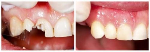 trám răng hư tổn