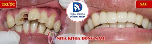 bọc sứ cho răng cửa hư tổn