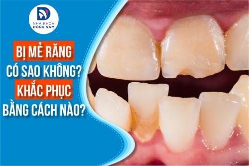 Bị mẻ răng có sao không Khắc phục bằng cách nào;
