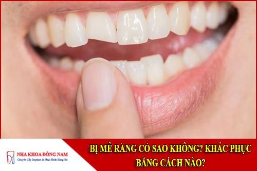 Bị mẻ răng có sao không? Khắc phục bằng cách nào?