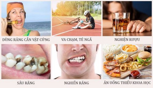 các nguyên nhân gây mẻ răng