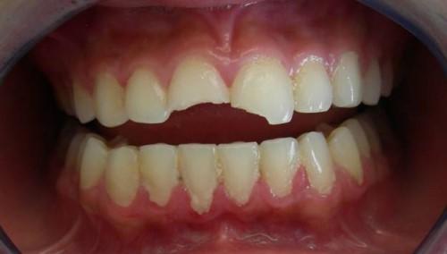 răng bị mẻ vỡ
