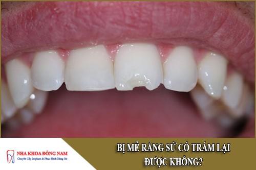 Bị mẻ răng sứ có trám lại được không?