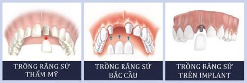 các kỹ thuật trồng răng sứ