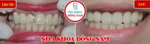 thay răng sứ bị mẻ vở