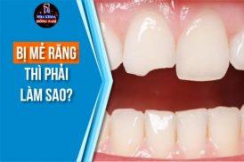 Bị mẻ răng thì phải làm sao