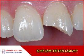 Bị mẻ răng thì phải làm sao?