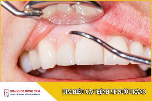 Tìm hiểu các bệnh về nướu răng