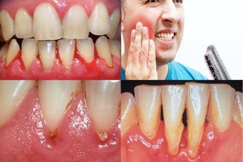 các triệu chứng về bệnh nướu răng