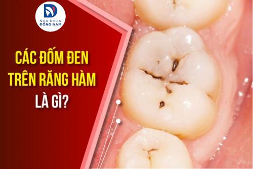 Các đốm đen trên răng hàm là gì?