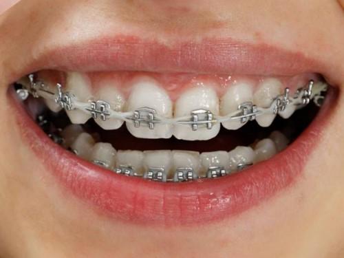 niềng răng mắc cài tự buộc