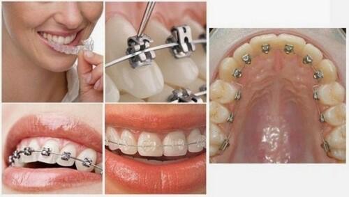 mắc cài niềng răng nào tốt