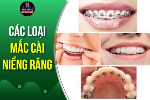 Bác sĩ giới thiệu các loại mắc cài niềng răng