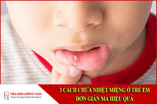 3 Cách chữa nhiệt miệng ở trẻ em đơn giản mà hiệu quả