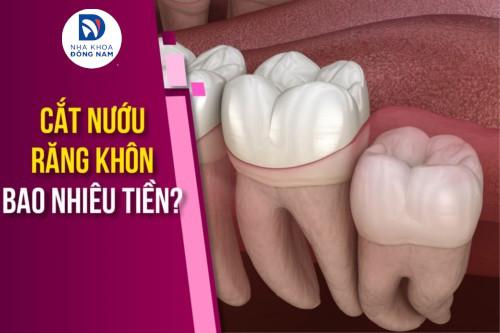 Cắt nướu răng khôn bao nhiêu tiền?