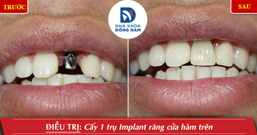 Cấy 1 răng cửa hàm trên và phục hình răng sứ