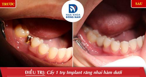 Cấy 1 răng cửa hàm dưới và phục hình răng sứ
