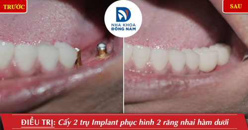 trồng 2 rang hàm dưới cho răng hàm nhai
