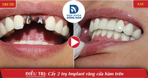 trồng 2 răng cửa hàm trên và phục hình răng sứ