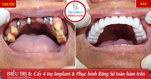 Cấy 4 răng Implant phục hình răng sứ toàn hàm trên
