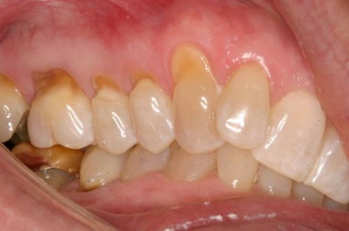 mòn chân răng
