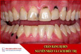 chân răng bị đen - nguyên nhân và cách điều trị