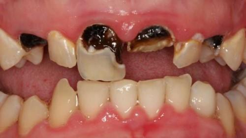 chân răng đen do sâu răng