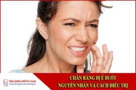 Chân răng bị ê buốt - Nguyên nhân và cách điều trị