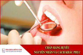 Chân răng bị yếu - Nguyên nhân và cách điều trị
