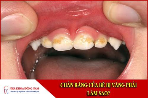 Chân răng của bé bị vàng phải làm sao?