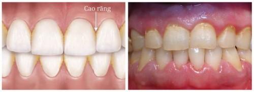 nguyên nhân chân răng của bé bị vàng