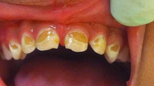 răng sữa bị mòn cổ