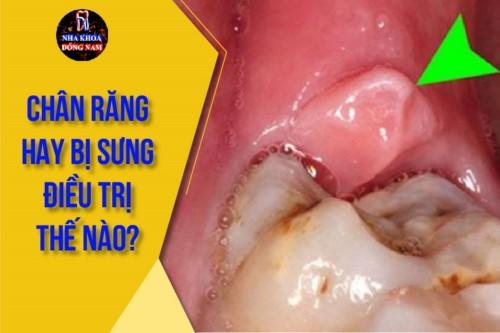 Chân răng hay bị sưng điều trị thế nào?