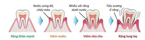 quá trình viêm nướu răng