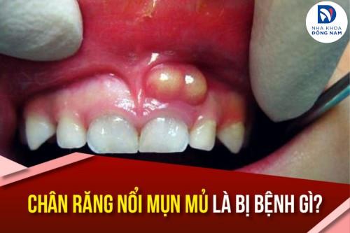 Chân răng nổi mụn mủ là bị bệnh gì?