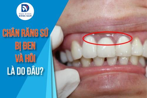Chân răng sứ bị đen và hôi là do đâu?